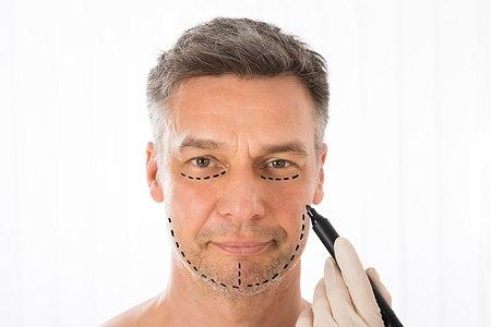 """ניתוח """"מיני מתיחת פנים"""" - מתאים מאוד גם לגברים (אילוסטרציה shutterstock)"""