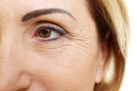 עם חלוף השנים, מופיעים בעור סימנים המבטאים את ההזדקנות. צילום: שאטרסטוק