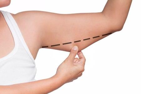 אחד האזורים המתאימים לטיפול הוא השומן בזרוע האחורית. צילום: שאטרסטוק
