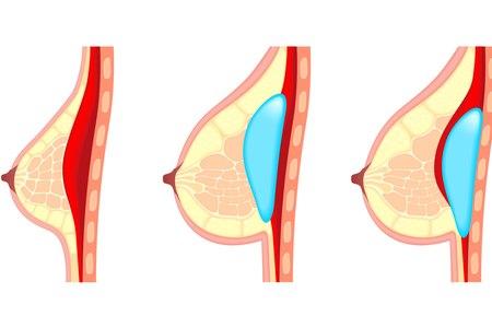 ניתן למקם את השתל מתחת לרקמת השד או מתחת לשריר. אילוסטרציה: שאטרסטוק