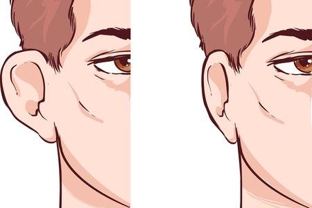 לפני ואחרי ניתוח להצמדת אוזניים. ניתן לבצע את הניתוח בכל גיל. צילום: שאטרסטוק