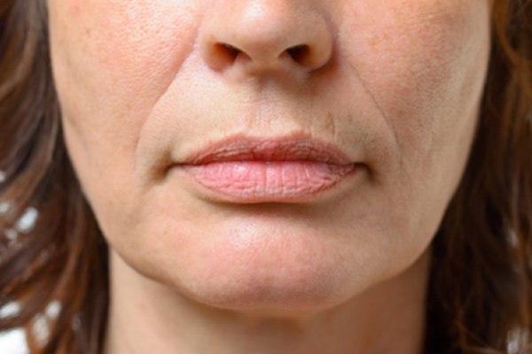 סימן נוסף של תהליך ההזדקנות מתרכז באזור השפתיים. צילום: שאטרסטוק