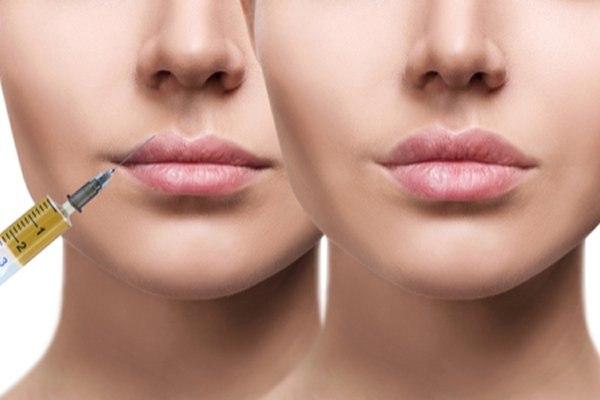 מילוי שפתיים - לפני ואחרי. צילום: שאטרסטוק