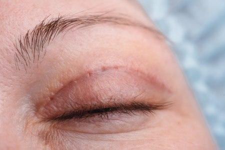 בעקבות הניתוח, אזור העיניים והעפעפיים נראה יותר צעיר. צילום: thinkstock