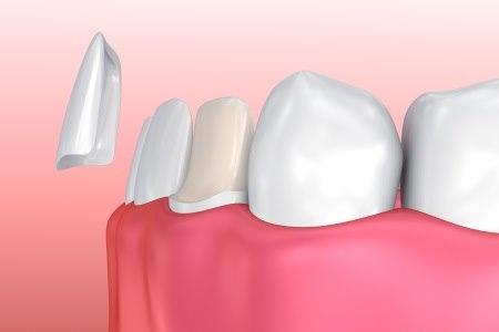ציפויי חרסינה מודבקים על גבי השיניים הקיימות. צילום: thinkstock