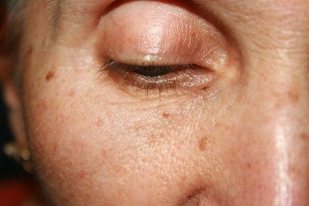 כתמי השמש הם עדות ליכולת הזיכרון של העור. צילום: שאטרסטוק