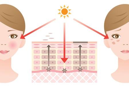 ככל שניחשף יותר לשמש, כך המלנוציטים יפרישו יותר מלנין. צילום: שאטרסטוק