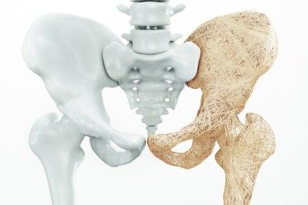כתוצאה מאוסטאופורוזיס עלולה להופיע ירידה בצפיפות העצם. צילום: thinkstock