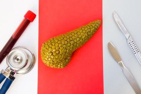 הטיפול העיקרי הינו ניתוח לכריתת הגידול בלבלב. צילום: שאטרסטוק