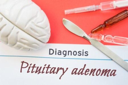 גידול אדנומה במוח, שכיח יותר בקרב מבוגרים ונדיר בילדים. צילום: שאטרסטוק