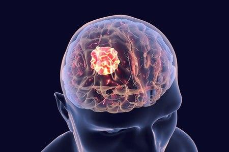 בניתוח מוח מונחה ניווט הגישה אל הגידול היא הקצרה ביותר. צילום: שאטרסטוק