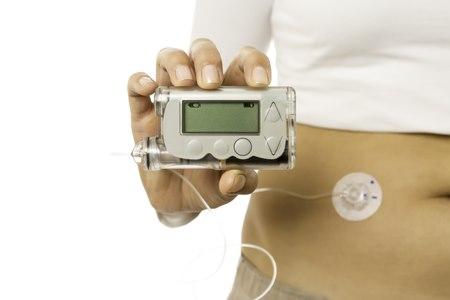סוכרת מסוג 1 מחייבת לעיתים טיפול במשאבת אינסולין. צילום: שאטרסטוק