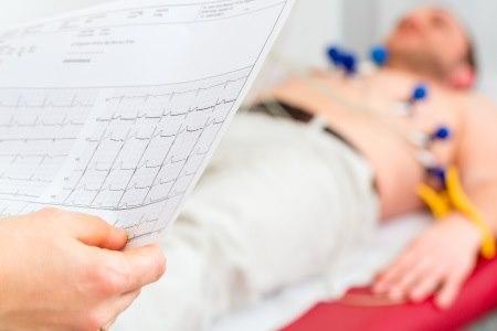 """בדיקת אק""""ג - אחת מהבדיקות הבסיסיות לאבחון תעוקת חזה. צילום: thinkstock"""