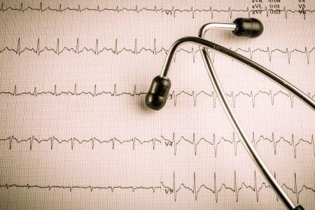 """ביצוע בדיקת אק""""ג בזמן הפרעת הקצב מוביל בד""""כ לאבחנה. צילום: thinkstock"""