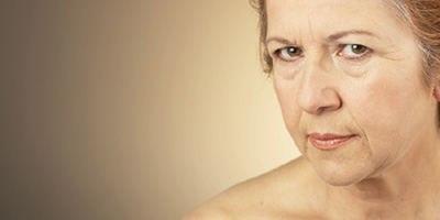 בעיות עור בגיל השלישי (אילוסטרציה)