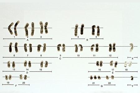 הגורם למחלה הוא פגם בכרומוזום מספר 7 (אילוסטרציה shutterstock)