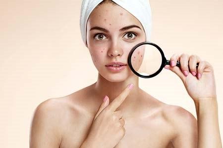 מחלת העור השכיחה ביותר בגיל העשרה (אילוסטרציה shutterstock)