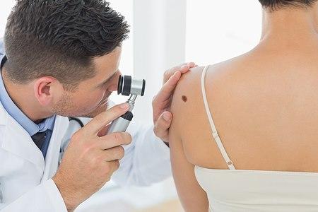 אבחון נגעי עור והסרתם עשויים להציל חיים (אילוסטרציה shutterstock)