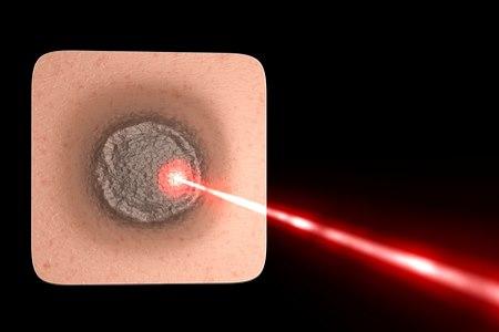 טיפול ממוקד ויעיל בנגע עור בעזרת קרן לייזר (אילוסטרציה shutterstock)