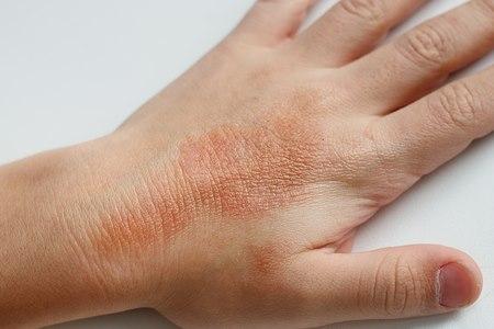הידיים סובלות במיוחד מתחושת היובש. צילום: שאטרסטוק