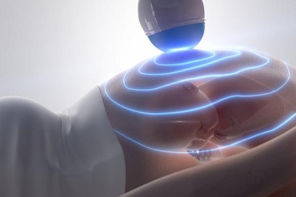 אקו לב עוברי בודק את המערכת הקרדיווסקולרית של התינוק. צילום: שאטרסטוק