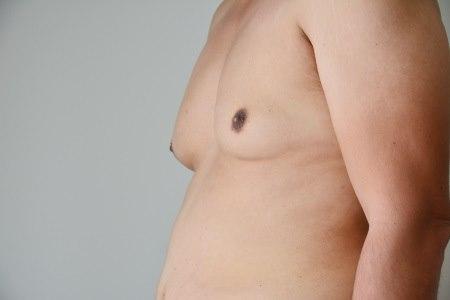 לבנים עם תסמונת קליינפלטר ישנה נטייה לשדיים מוגדלים. צילום: thinkstock