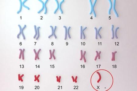התסמונת מתפתחת כתוצאה משיבוש בתהליך החלוקה הגנטי. צילום: שאטרסטוק