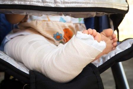 מאפיין המחלה הבולט הוא עצמות הנוטות להישבר בקלות. צילום: שאטרסטוק