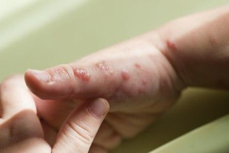 ברוב החולים, יופיעו קבוצות שלפוחיות על רקע אודם של העור. צילום: שאטרסטוק