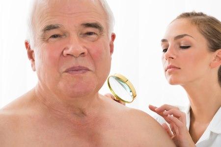 """אבחון המחלה בשלבים המוקדמים נעשה בד""""כ ע""""י רופא עור. צילום: שאטרסטוק"""