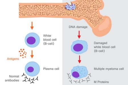 המחלה מאופיינת בנגעים המובילים להרס עצמי של העצמות. צילום: שאטרסטוק