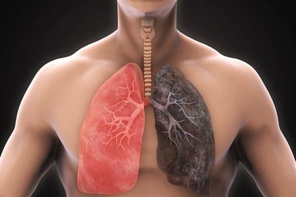 משמאל - ריאה בריאה, מימין - ריאה של מעשן. אילוסטרציה: שאטרסטוק