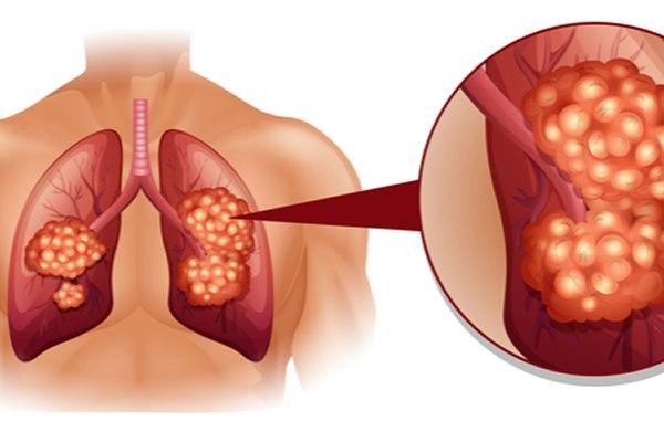 לאבחנת גידולי ריאה יש משמעות גדולה על ההחלטה הטיפולית. צילום: שאטרסטוק