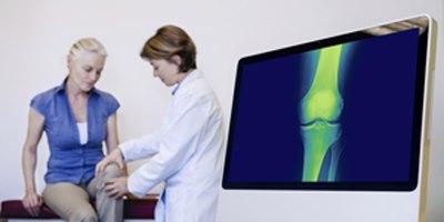 דלקת מפרקים ניוונית (אילוסטרציה. צילום shutterstock)