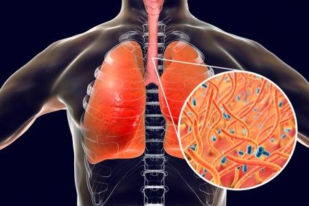 חיידק הבורדטלה פרטוזיס מופרש מדרכי הנשימה של החולים. צילום: שאטרסטוק