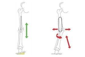 מימין: קריסה וסיבוב פנימי של הברך כתוצאה מהטיה פנימית של כף הרגל משמאל: תיקון ציר התנועה של הרגל, בעזרת מדרס ביומכאני.