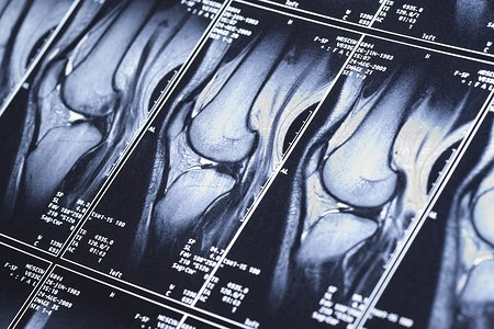 MRI של הברך. אילוסטרציה: שאטרסטוק