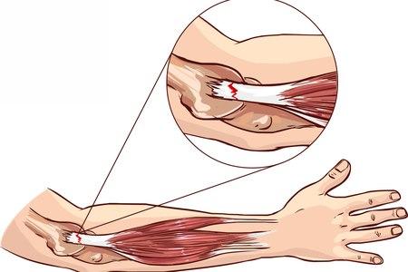 מרפק טניס. דלקת בחיבורים שבין הגידים לבין העצמות. איור: שאטרסטוק