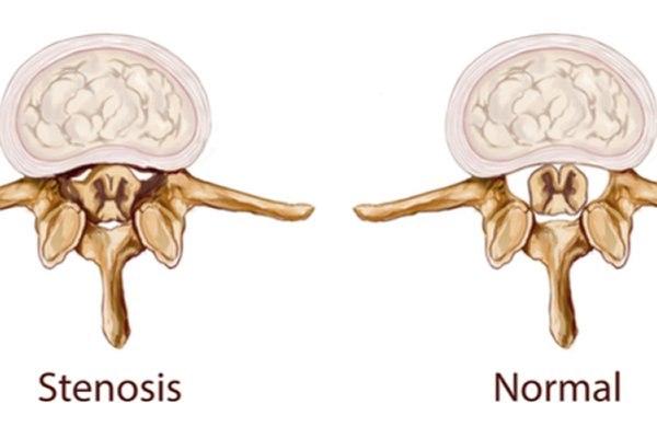 מימין: תעלת שדרה תקינה, משמאל: היצרות תעלה השדרה. צילום: שאטרסטוק