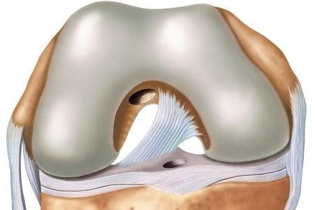 שחזור הרצועה מבוצע כשיש קרע באחת מהרצועות הצולבות. צילום: thinkstock