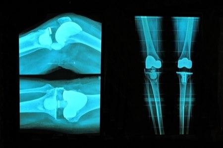 כיום השתלת מפרקים כרוכה באשפוז קצר ובשיקום של 2-3 חודשים. צילום: שאטרסטוק
