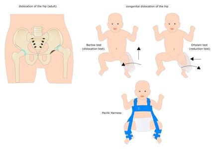 כשהפריקה אינה חמורה, התינוק יטופל במתקן שנקרא Pavlik. צילום: שאטרסטוק